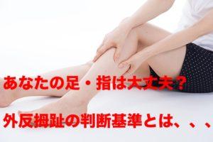 外反母趾の角度別、診断基準を解説!貴方の足指は正常ですか?