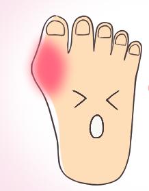 外反母趾の痛みがでる場所とは?そのタコはもしかすると外反母趾が原因かも!?
