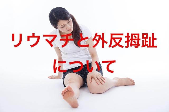 そもそもリウマチとは?リウマチと外反母趾の関係性について解説!
