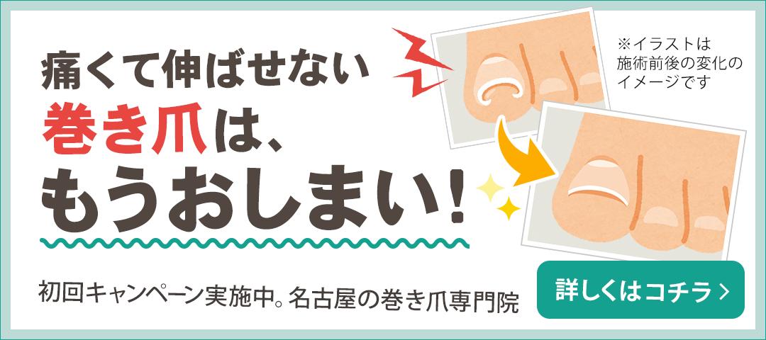 名古屋の巻き爪専門院