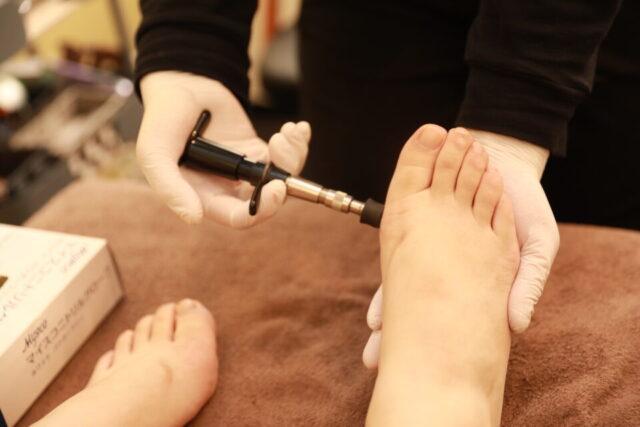 足の指(親指)の付け根の骨が出っ張ってる気がする・・・それって外反母趾かも!?